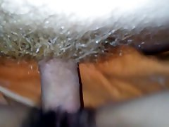 Chinese, Hairy, Close Up